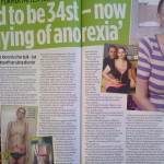 Malissa once weighed 34 st – now she's dying from anorexia